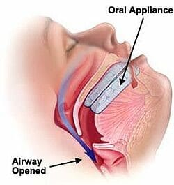oral appliance sleep apnea