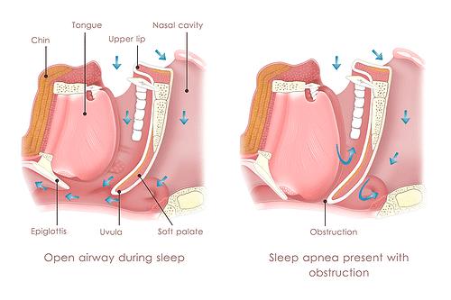 Oral Appliance For Sleep Apnea